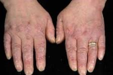 Epidermolisi Bollosa: rare malattie genetiche della pelle